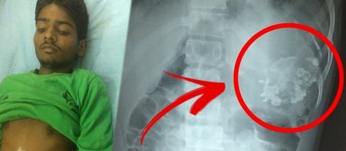 Indiano viveu por 18 anos com feto parasita dentro da barriga
