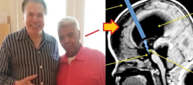 Roque, do Silvio Santos, passará por cirurgia