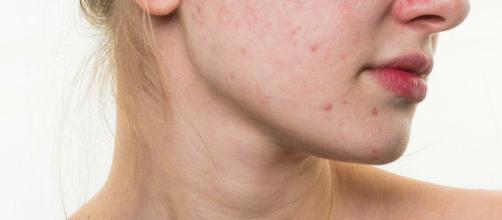 Cómo eliminar el acné con remedios naturales