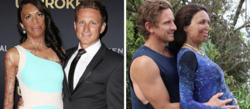 Turia Pitt posa ao lado de seu esposo, Michael Hoskin, que deu grande apoio à ex-modelo.