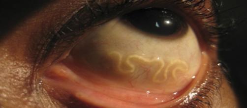 Parasita que se instalou em olho humano. (Reprodução)