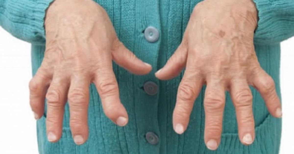 Farmaci per Curare l'Artrite Reumatoide