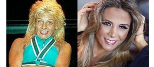 O antes e depois dessas celebridades impressiona