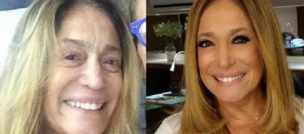 Ao 75 anos, Susana Vieira é internada na UTI de hospital no Rio de Janeiro