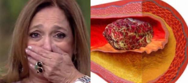 Doença de Susana Vieira é mais grave que parece. (Foto Reprodução).