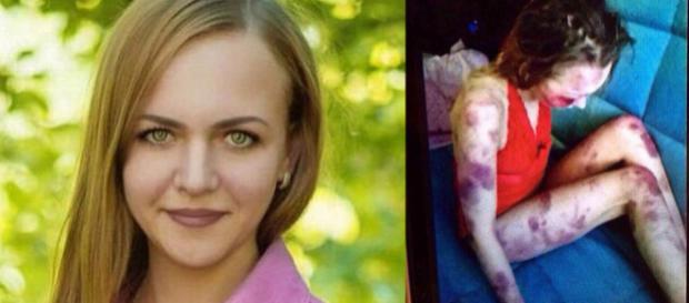 Un bărbat din Rusia și-a bătut soția și apoi a postat apoi imaginile pe internet - Foto: Daily Mail