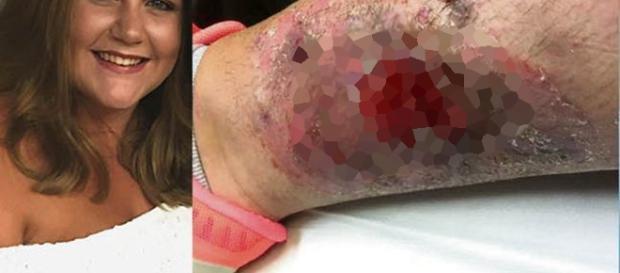Mulher leva picada de aranha na perna