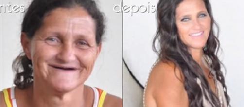 Sissi estava há mais de 20 anos sem dentes