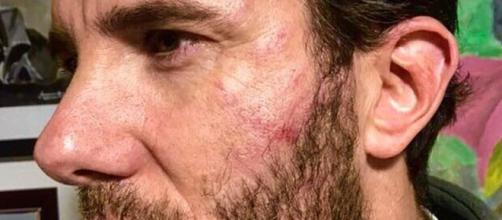 Israel Lancho 'GH VIP 3' agredido al intentar frenar un atraco