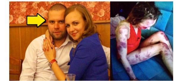 Ela acabou morrendo devido as lesões. (Foto Reprodução).