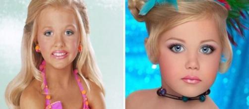 Elas sacrificaram sua infância em nome da beleza ( Fotos - Reprodução )