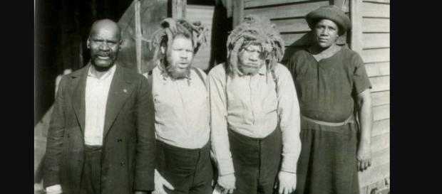 Eko and Iko the albino twins returned from the circus.(Image via Beth Macy Truvine search for truth/The Roanoke Times).