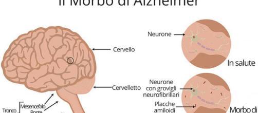Alzheimer, neuroinfiammazione e placche amiloidi