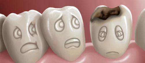 Qué causa, las caries dentales? - Mundo Odontólogo - mundoodontologo.com