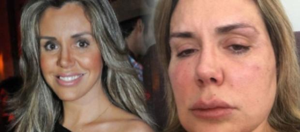'Meu rosto derreteu': veja como está Renata Banhara; imagem forte