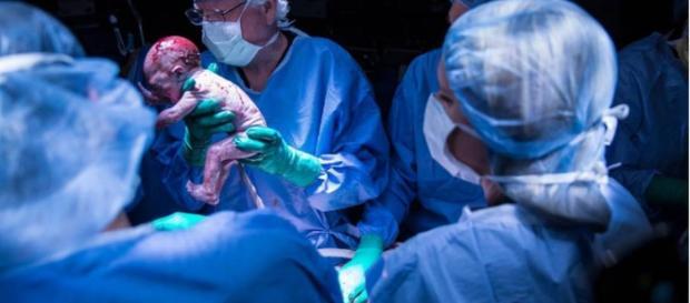 Mulher com útero transplantado dá à luz pela primeira vez nos EUA.