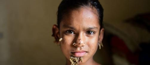 Sahana (10) kan være den første jenta diagnotisert med «tremann ... - vg.no