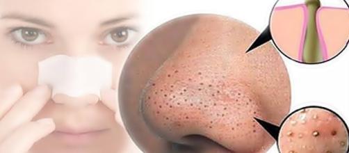 1000 ideias sobre Melasma Tratamento no Pinterest | Tratamento De ... - pinterest.com