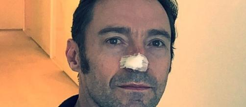 It's deja vu for Hugh Jackman as he gets another cancer treatment for his nose. / Photo from 'The Mirror' - mirror.co.uk