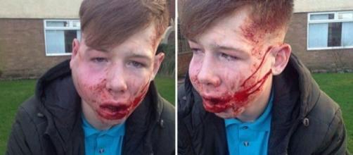 Menino de 15 anos foi brutalmente agredido