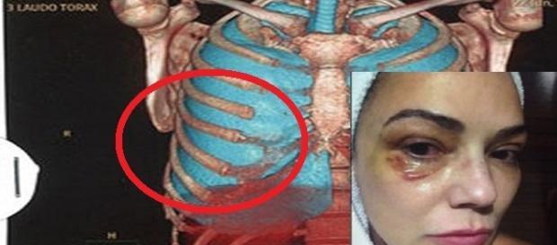Imagem do exame de corpo de delito de Luiza Brunet
