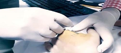 Aplicação do microchip sendo feita na mão de usuário