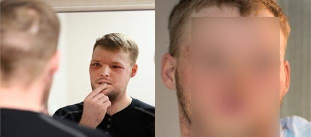 Jovem recebe transplante de rosto. (foto: reprodução Charlie Neibergall)