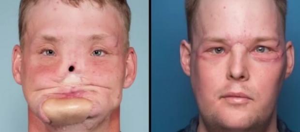 Andy Sandness passou por um transplante facial (Crédito: YouTube/YourOpinion)