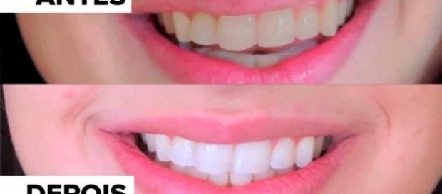Quatro Formas Inacreditaveis De Clarear Seus Dentes Em Casa