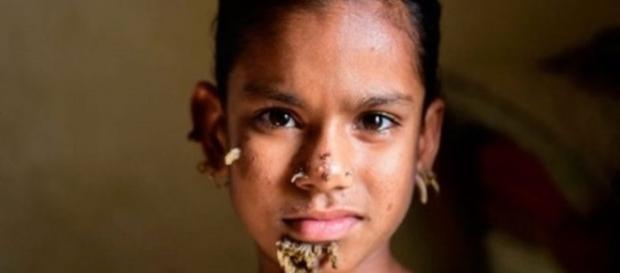 O pai de Sahana, torce para que os médicos possam conseguir tirar esses 'galhos' do lindo rostinho de sua filha