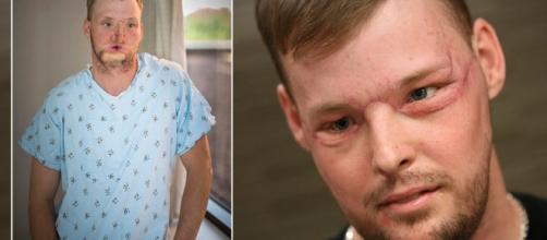 Andy Sandness, prima e dopo il trapianto facciale