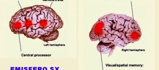 L'emisfero destro e quello sinistro del cervello.