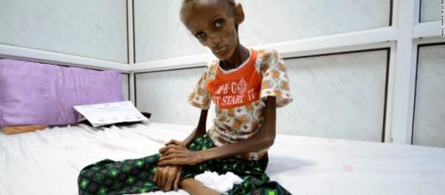 Yemen food crisis leaves millions at risk of starving - CNN.com - cnn.com