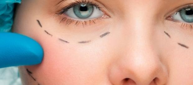 Cirurgia estética funcional é a nova moda para afinar o rosto