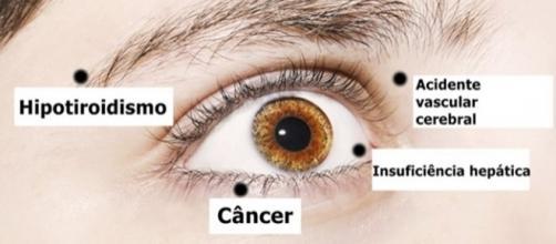 Seja um simples terçol ou uma visão turva, qualquer sinal que apareça nos olhos pode indicar um problema de saúde