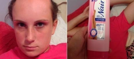 Menina foi tomar banho mas usou creme depilatório no lugar de shampoo.