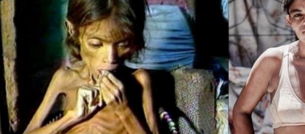 Esta menina comoveu o Brasil, mas venceu a fome; você não vai acreditar em como ela está agora