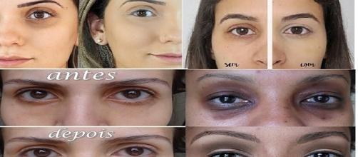 5 dicas para auxiliar na remoção de olheiras