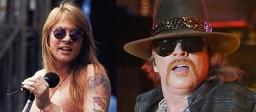 O antes e o depois de Axl Rose