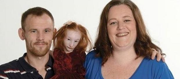 Charlotte Garside elle est la plus petite fille au monde !