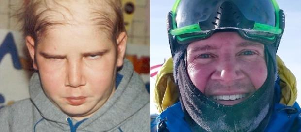 Sean Swarner, cel care a supraviețuit de două ori cancerului și are un singur plămân funcțional, este gata să cucerească Polul Nord - Foto: People.com