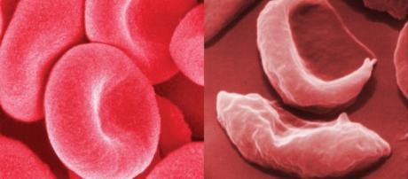 Anemia falciforme, ragazzo guarito grazie a terapia genica - healthclinicweb.com