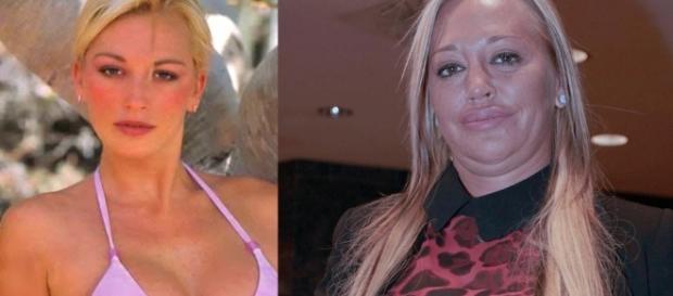 5 cambios de famosos que dan miedo, por su afición a la cirugía ... - eldiario.es