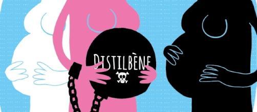 Les enfants Distilbène portent la marque indélébile de ce scandale sanitaire