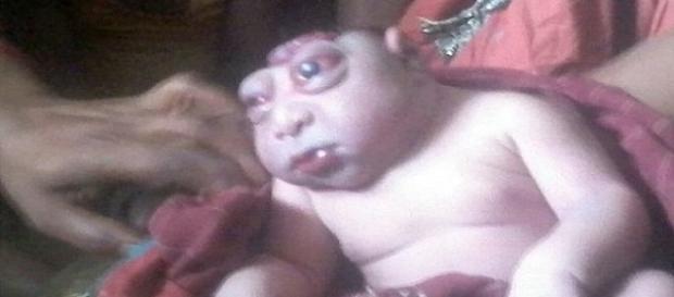 Mãe chegou a recusar bebê assim que viu o filho pela primeira vez após o parto