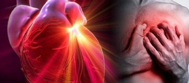 Infarctul miocardic - tratat cu spray post-traumatic Sursa: La Fucina