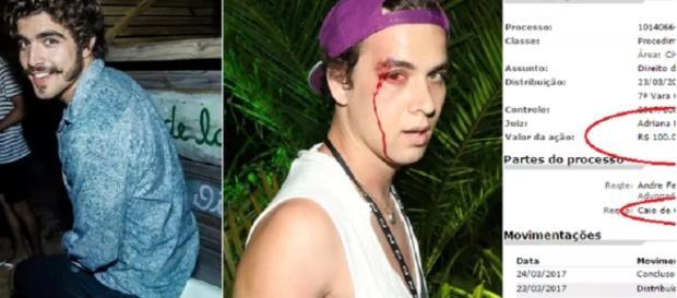 Caio Castro pode perder R$100 mil por ter agredido um fotógrafo