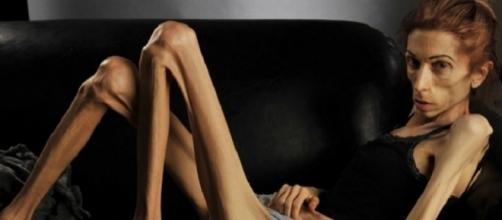 Atriz americana vence a anorexia e se recupera