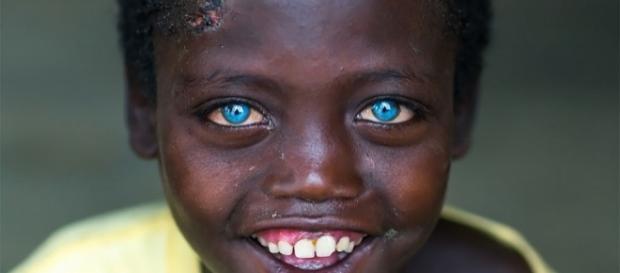 Abushe, a criança africana com olhos azuis