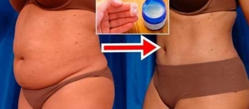 Creme a base de Vick Vaporub ajuda a eliminar as gorduras localizadas